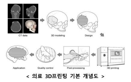 한국형 '3D 프린팅 의료보형물 제작 표준' 국제표준 과제로 채택